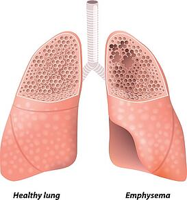 illustration of lung with emphysema